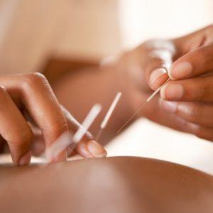 Cinq points d'acupuncture pour l'été